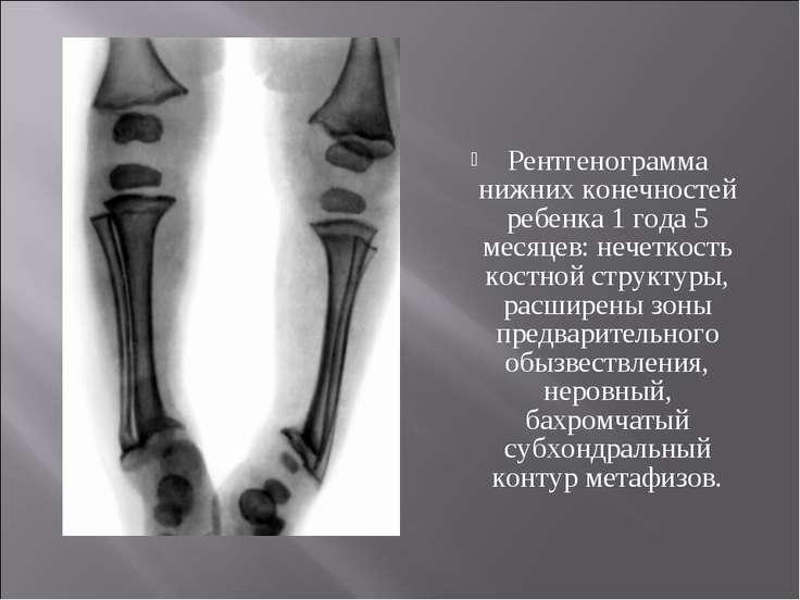 Рентгенограмма нижних конечностей ребенка 1 года 5 месяцев: нечеткость костно...