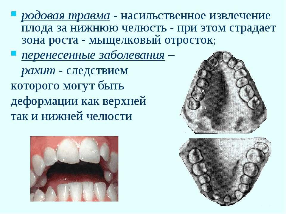 родовая травма - насильственное извлечение плода за нижнюю челюсть - при этом...