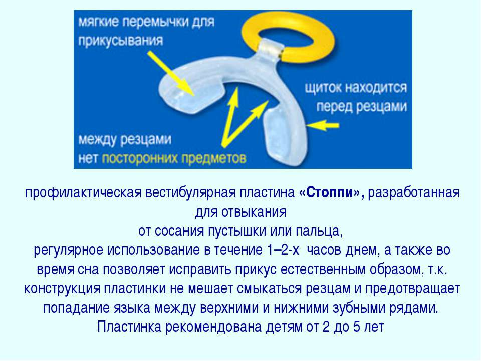 профилактическая вестибулярная пластина «Стоппи», разработанная для отвыкания...
