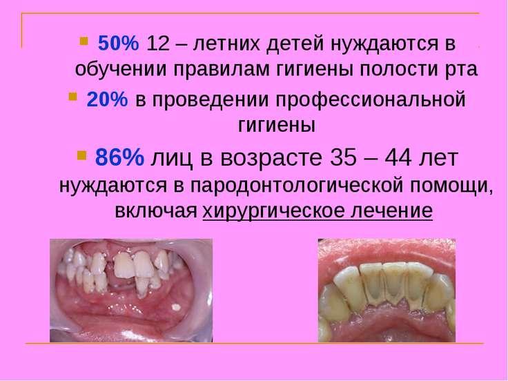 50% 12 – летних детей нуждаются в обучении правилам гигиены полости рта 20% в...