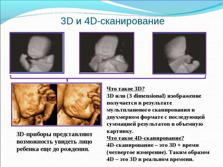 3D и 4D-cканирование Что такое 3D? 3D или (3 dimensional) изображение получае...