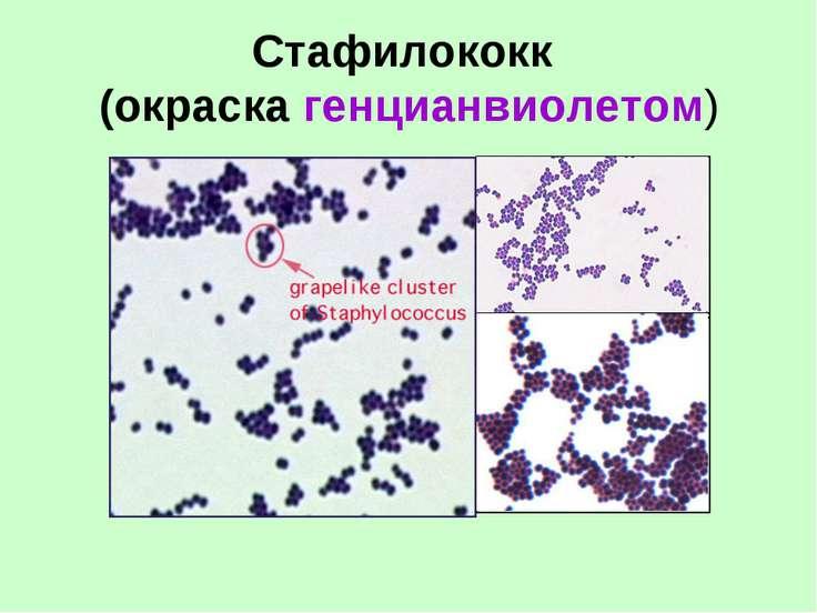 Стафилококк (окраска генцианвиолетом)
