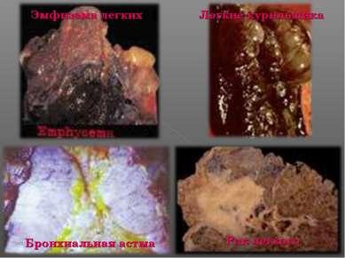 Эмфизема легких Легкие курильщика Бронхиальная астма Рак легкого