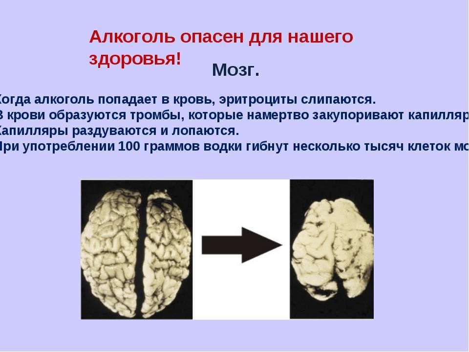 Алкоголь опасен для нашего здоровья! Мозг. Когда алкоголь попадает в кровь, э...