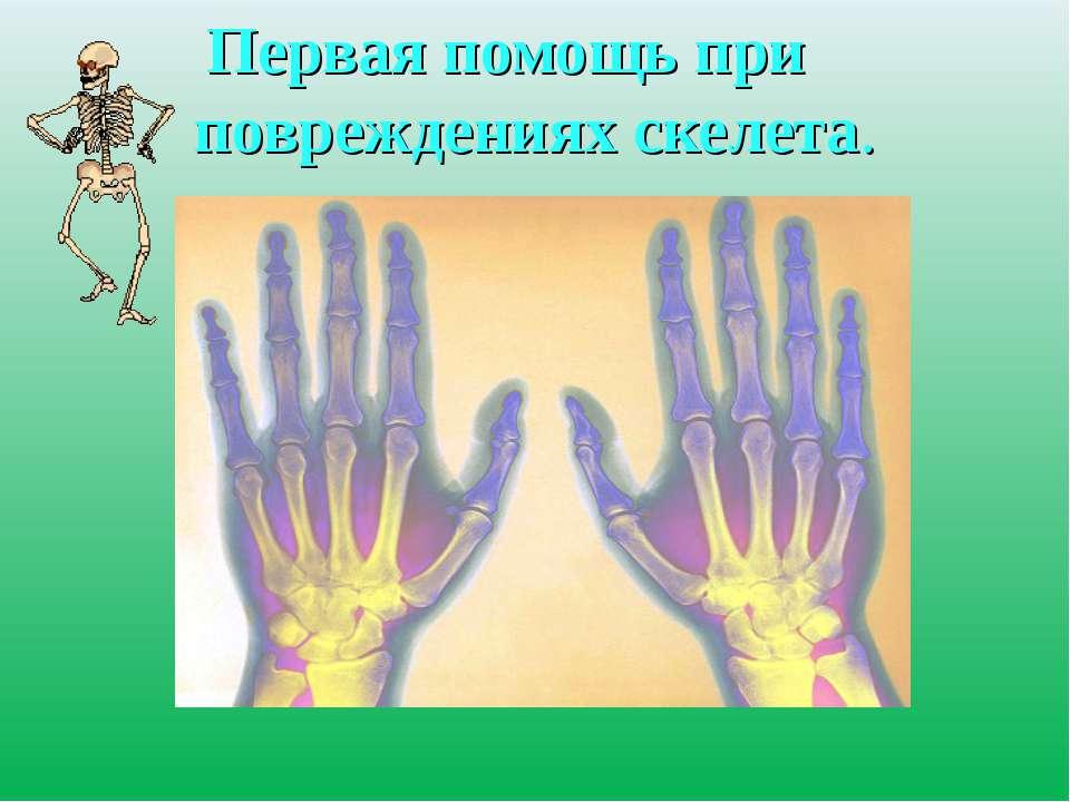 Первая помощь при повреждениях скелета.