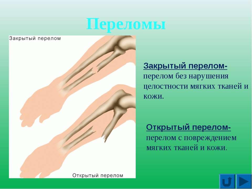 Переломы Закрытый перелом- перелом без нарушения целостности мягких тканей и ...