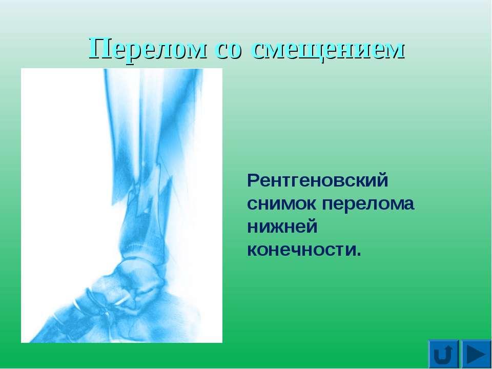 Перелом со смещением Рентгеновский снимок перелома нижней конечности.