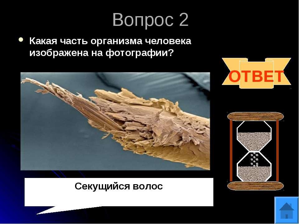 Вопрос 2 Какая часть организма человека изображена на фотографии? ОТВЕТ Секущ...