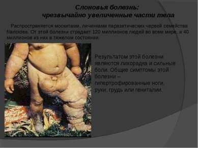 Слоновья болезнь: чрезвычайно увеличенные части тела Распространяется москита...