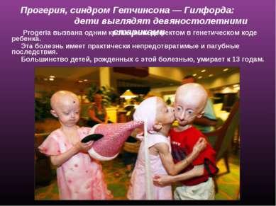Прогерия, синдром Гетчинсона— Гилфорда: дети выглядят девяностолетними стари...