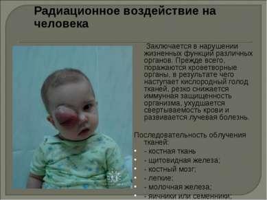 Радиационное воздействие на человека Заключается в нарушении жизненных функци...