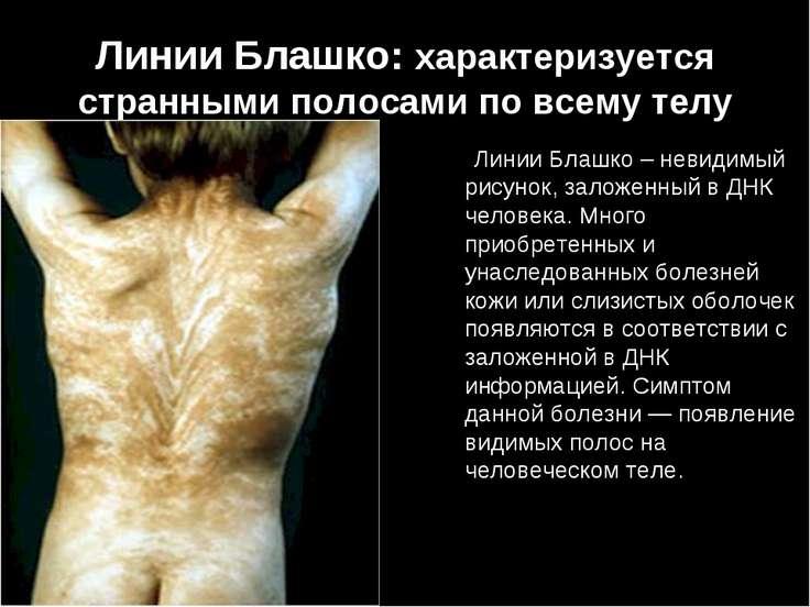 Линии Блашко: характеризуется странными полосами по всему телу Линии Блашко –...