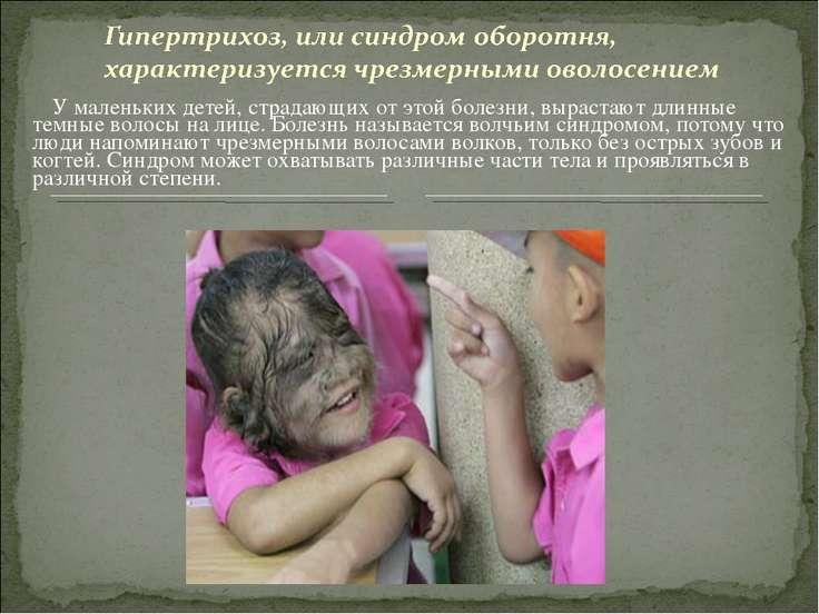 У маленьких детей, страдающих от этой болезни, вырастают длинные темные волос...