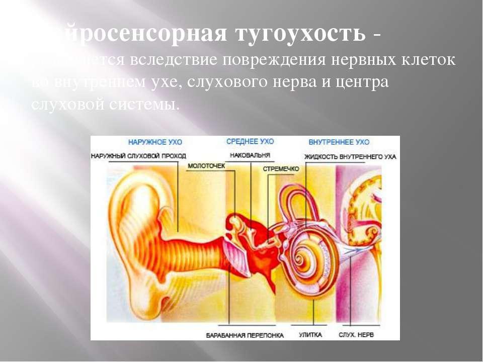 Нейросенсорная тугоухость - развивается вследствие повреждения нервных клеток...