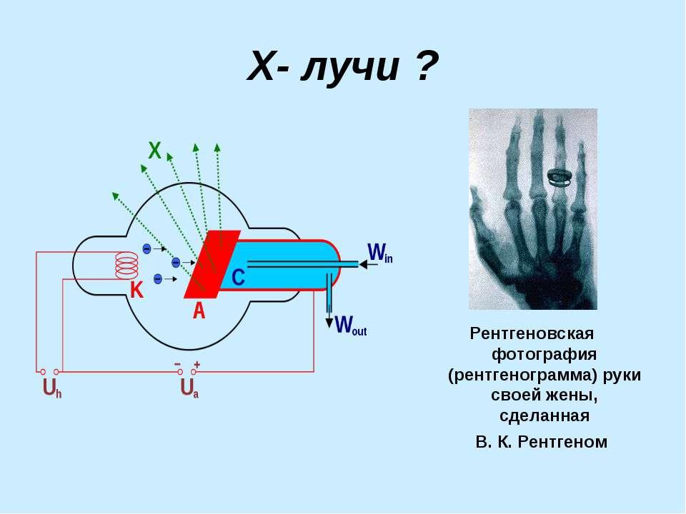 Х- лучи ? Рентгеновская фотография (рентгенограмма) руки своей жены, сделанна...