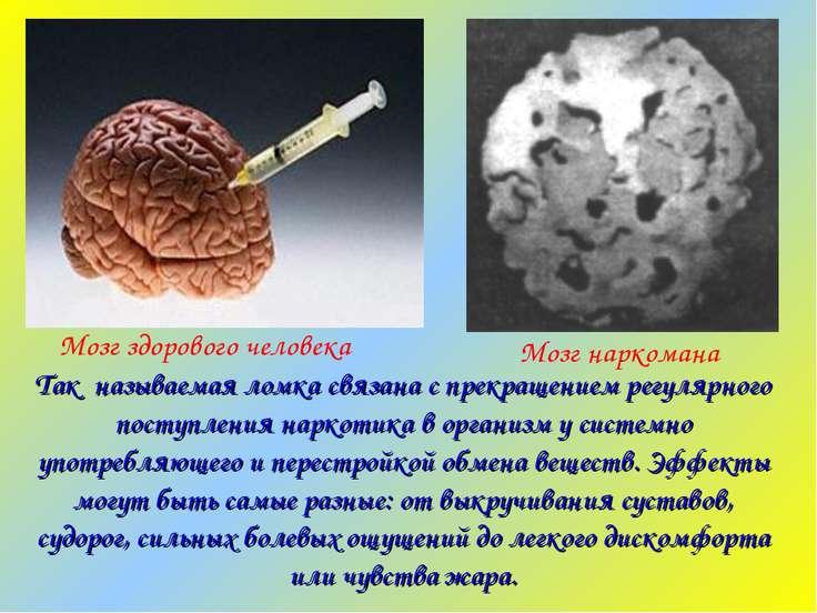 Мозг наркомана Мозг здорового человека Так называемая ломка связана с прекращ...