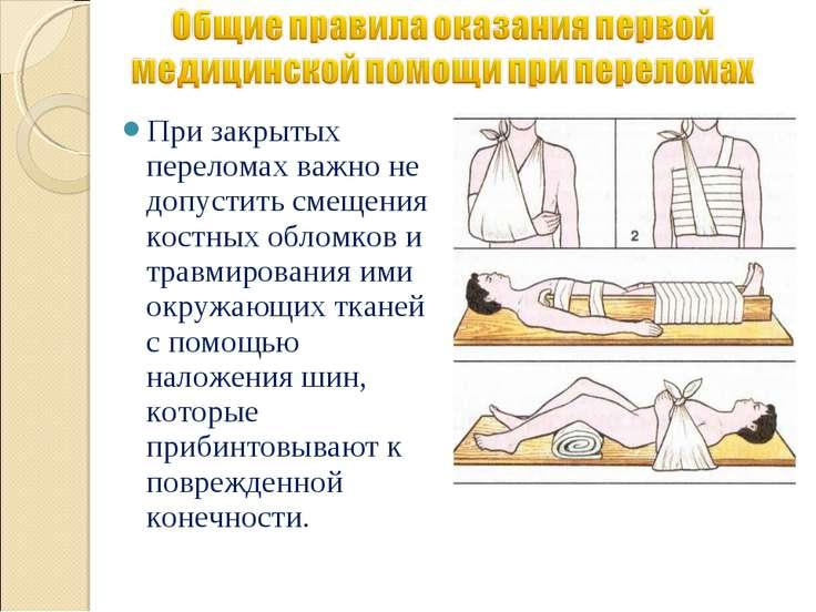 При закрытых переломах важно не допустить смещения костных обломков и травмир...