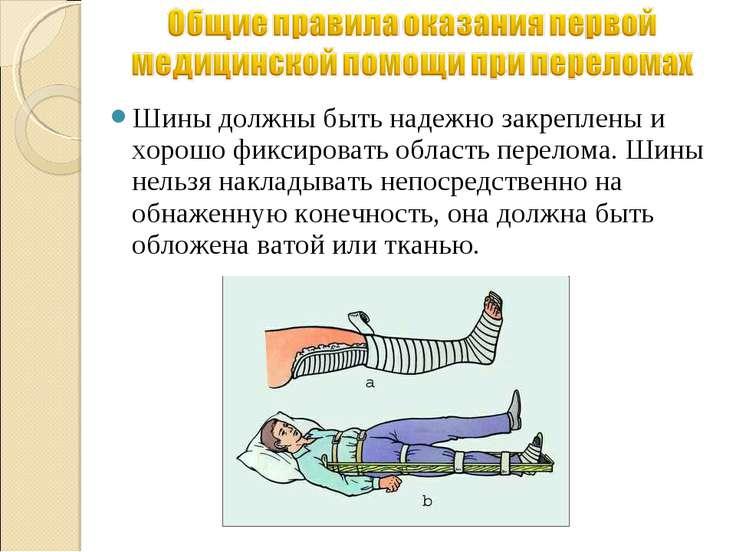 Шины должны быть надежно закреплены и хорошо фиксировать область перелома. Ши...