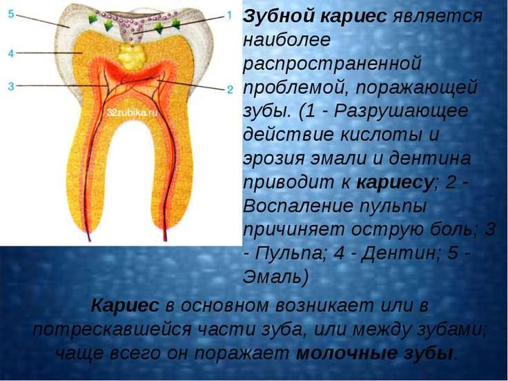 Кариес в основном возникает или в потрескавшейся части зуба, или между зубами...