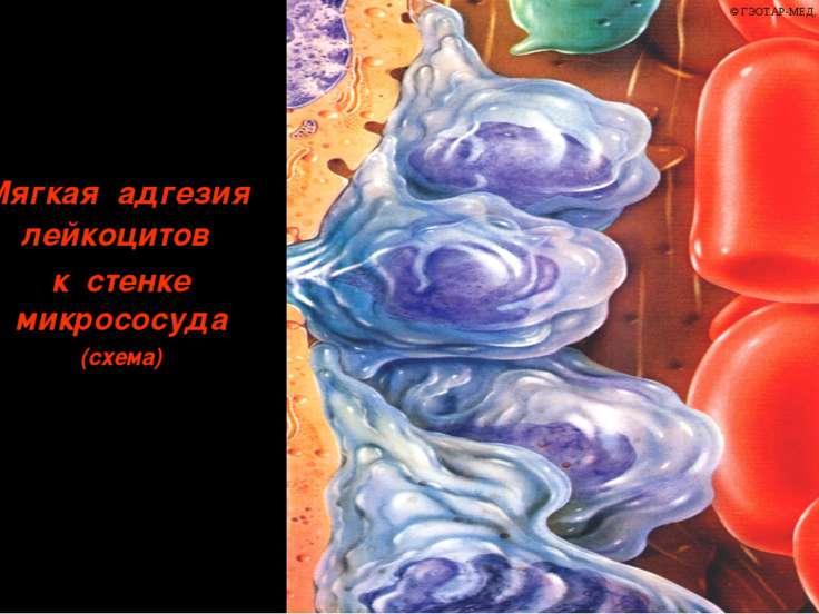 Мягкая адгезия лейкоцитов к стенке микрососуда (схема)
