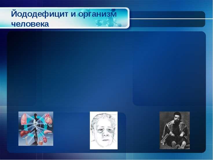 Йододефицит и организм человека