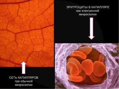 СЕТЬ КАПИЛЛЯРОВ при обычной микроскопии ЭРИТРОЦИТЫ В КАПИЛЛЯРЕ при электронно...