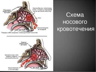 Схема носового кровотечения