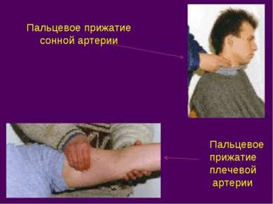 Пальцевое прижатие сонной артерии Пальцевое прижатие плечевой артерии