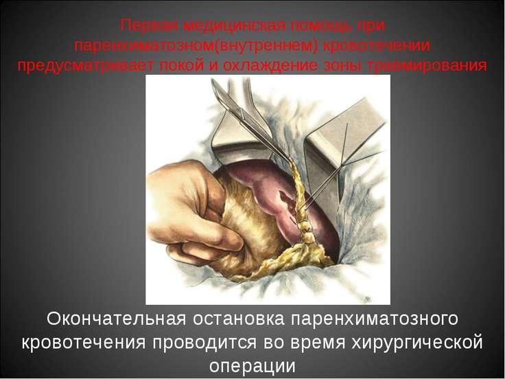 Первая медицинская помощь при паренхиматозном(внутреннем) кровотечении предус...