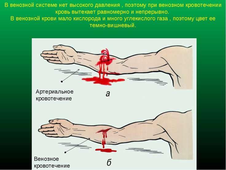 В венозной системе нет высокого давления , поэтому при венозном кровотечении ...