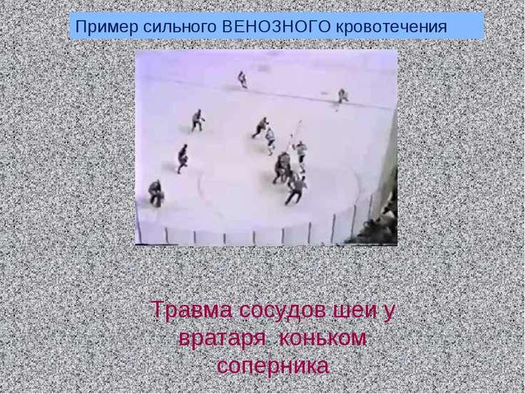 Пример сильного ВЕНОЗНОГО кровотечения Травма сосудов шеи у вратаря коньком с...
