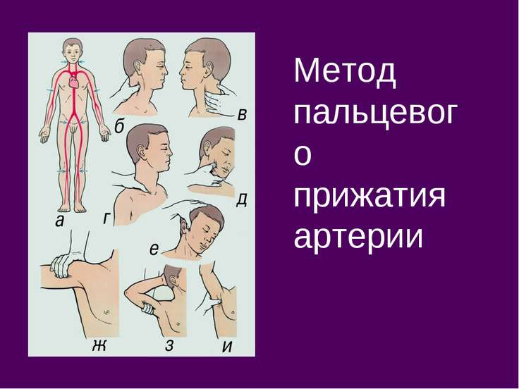 Метод пальцевого прижатия артерии