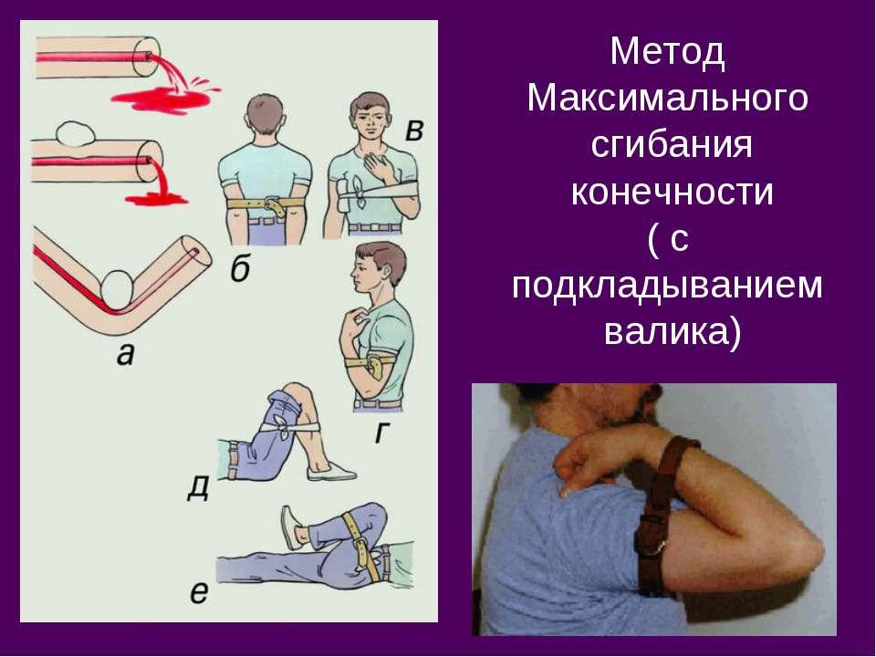 Метод Максимального сгибания конечности ( с подкладыванием валика)