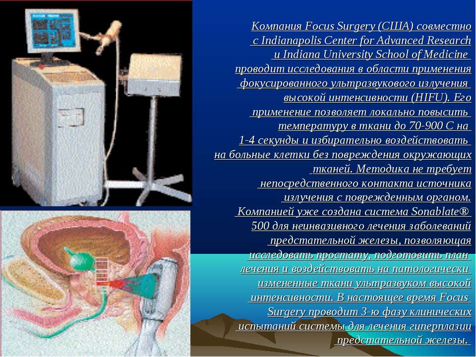 Компания Focus Surgery (США) совместно с Indianapolis Center for Advanced Res...