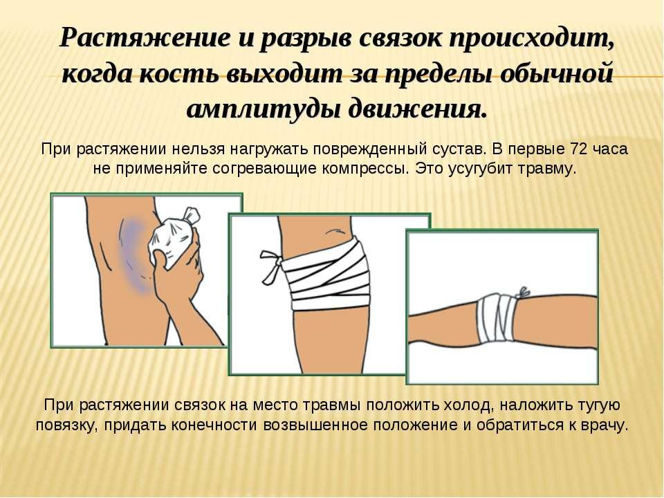 оказание первой помощи при переломе руки в локтевом суставе