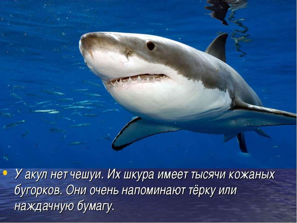 У акул нет чешуи. Их шкура имеет тысячи кожаных бугорков. Они очень напоминаю...