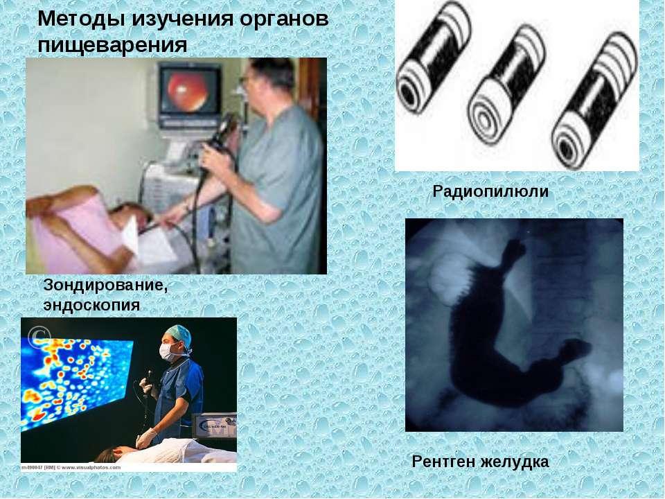 Методы изучения органов пищеварения Рентген желудка Зондирование, эндоскопия ...
