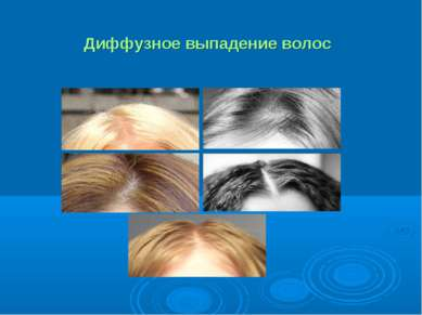 Диффузное выпадение волос