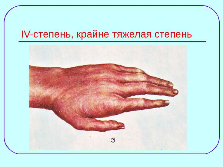 IV-степень, крайне тяжелая степень