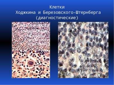 Клетки Ходжкина и Березовского-Штернберга (диагностические)