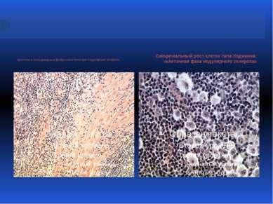 Арочные и кольцевидные фиброзные поля при нодулярном склерозе Синцитиальный р...
