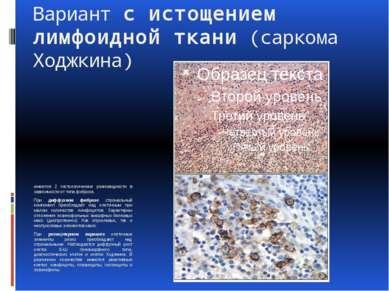 Вариант с истощением лимфоидной ткани (саркома Ходжкина) имеются 2 гистологич...
