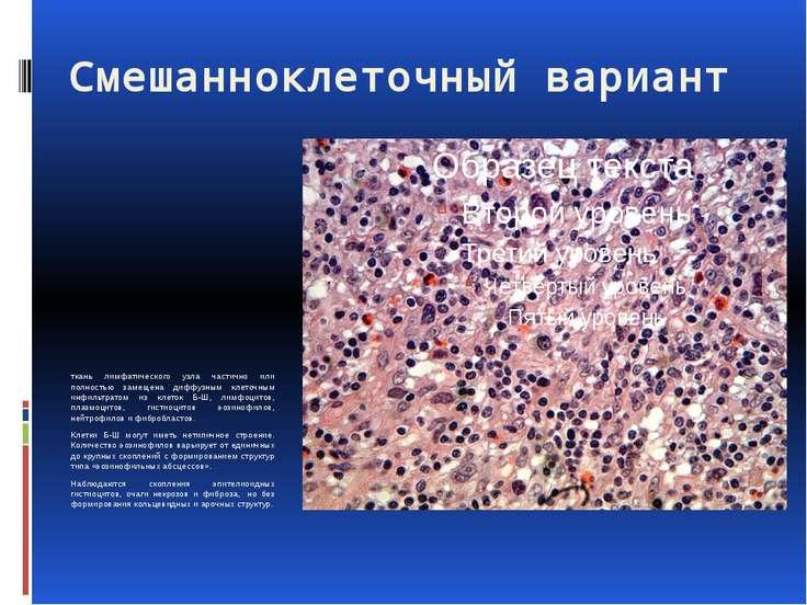 Смешанноклеточный вариант ткань лимфатического узла частично или полностью за...