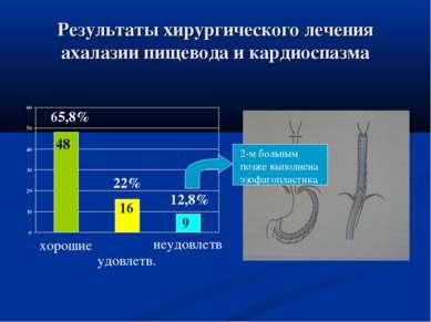 Результаты хирургического лечения ахалазии пищевода и кардиоспазма 2-м больны...