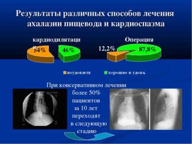 Результаты различных способов лечения ахалазии пищевода и кардиоспазма 46% 54...