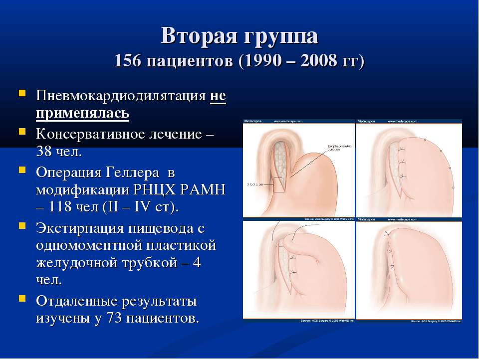 Вторая группа 156 пациентов (1990 – 2008 гг) Пневмокардиодилятация не применя...