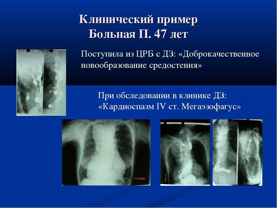 Клинический пример Больная П. 47 лет Поступила из ЦРБ с ДЗ: «Доброкачественно...