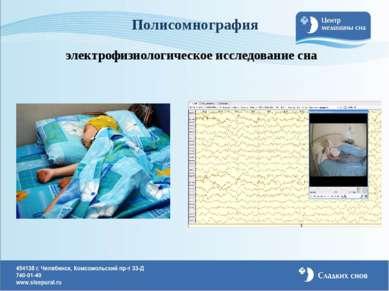 Полисомнография электрофизиологическое исследование сна