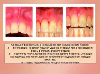 Операция френэктомии с использованием хирургического лазера: а — до операции:...