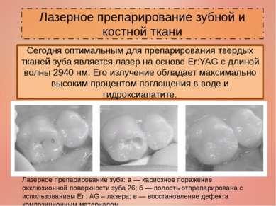 Лазерное препарирование зубной и костной ткани Сегодня оптимальным для препар...